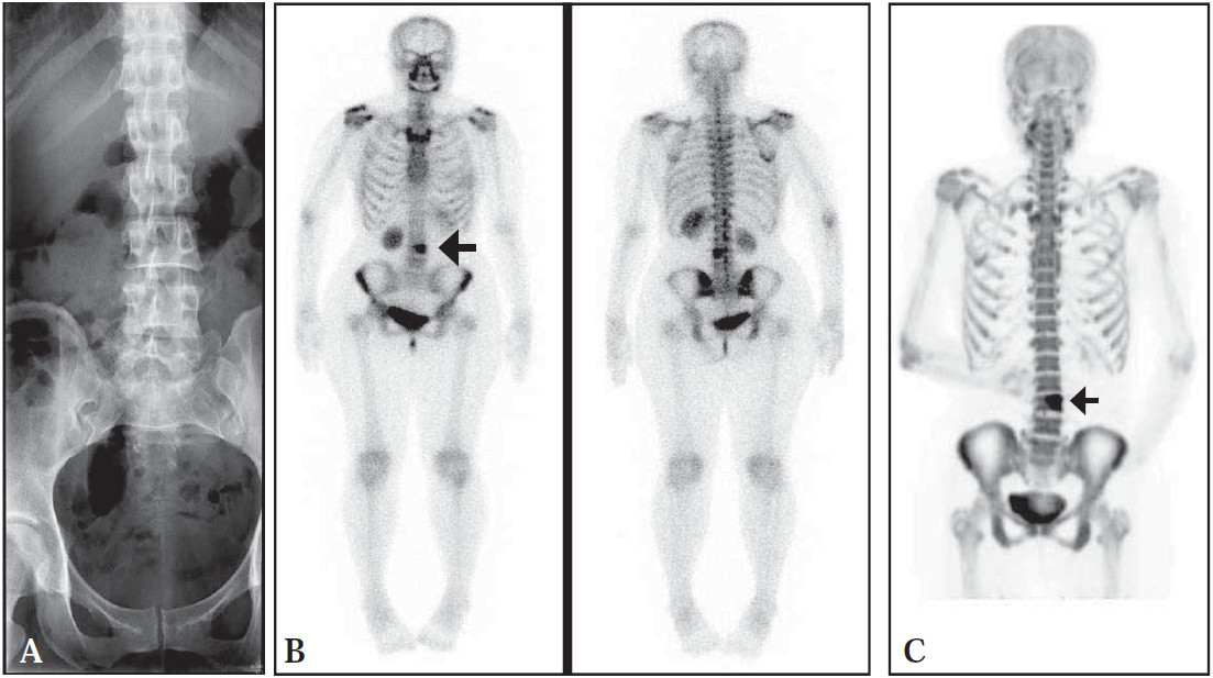 Imaging of A Single Malignant Osseous Involvement by F-18