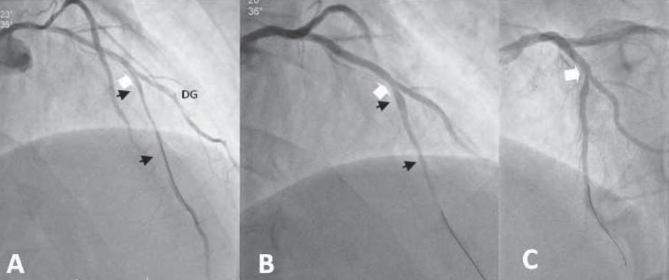 Atheroma and Coronary Artery Spasm