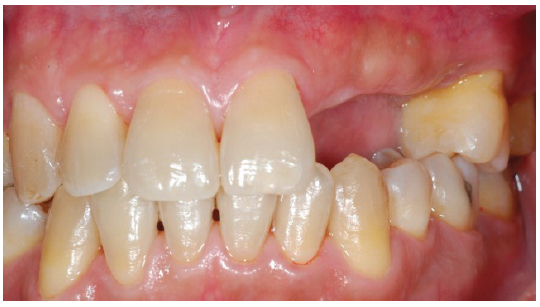 Dental Implant for Teeth Replacement in Esthetic Zone