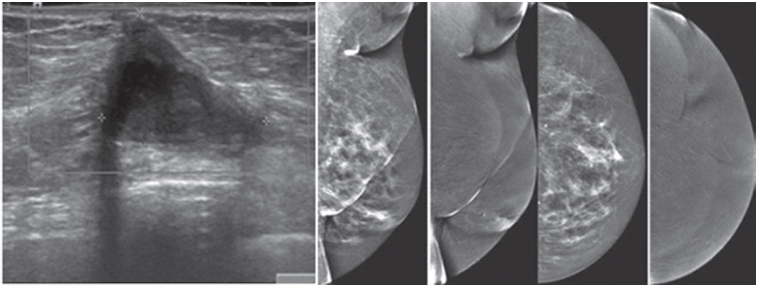 Figure 1C: Female 64-years of age, post op left breast conserving therapy  (BCT). Mammography shows architectural distortion at surgical scar in left  lower ...