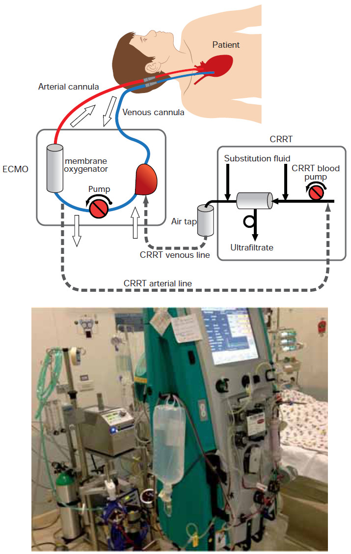Extracorporeal Membrane Oxygenator  Ecmo  For Life Support
